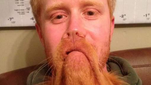 Hond baard